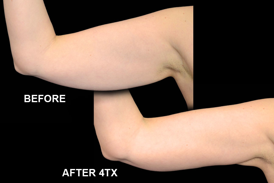 Before and After image of Exilis Ultra of woman's arms