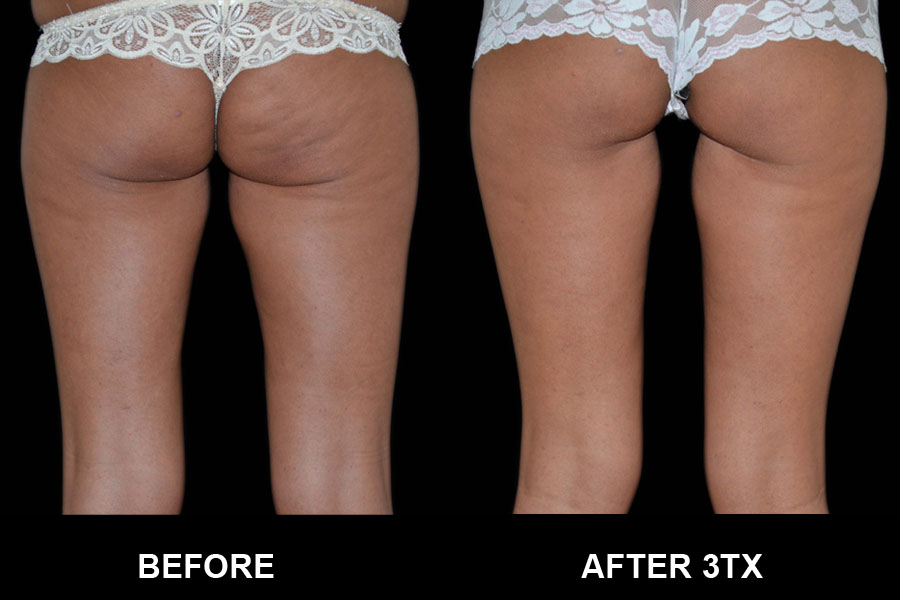 Before and After image of Exilis Ultra woman's legs