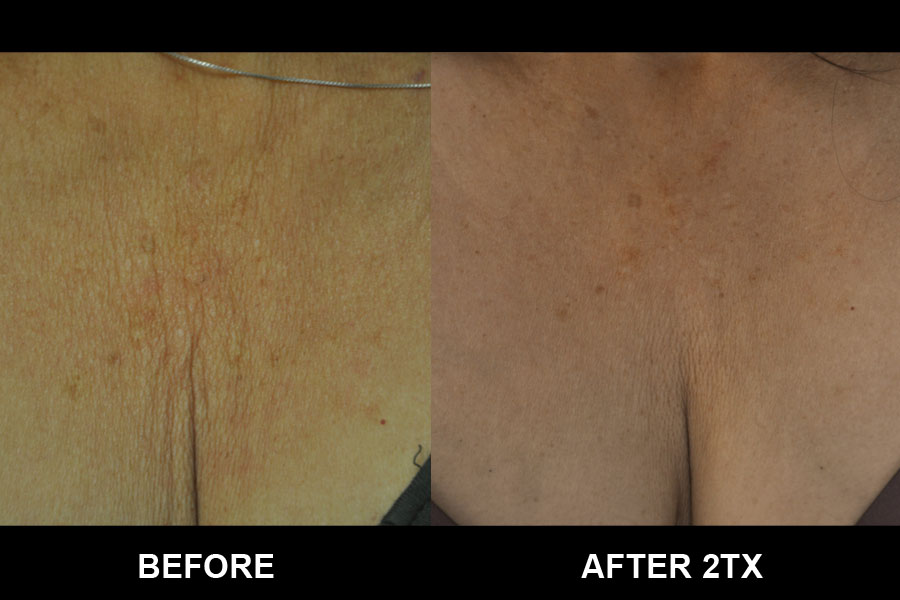 Before and After image of Exilis Ultra woman