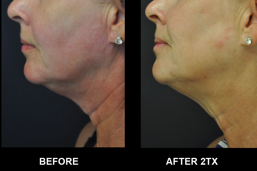 Before and After image of Exilis Ultra of woman's chin