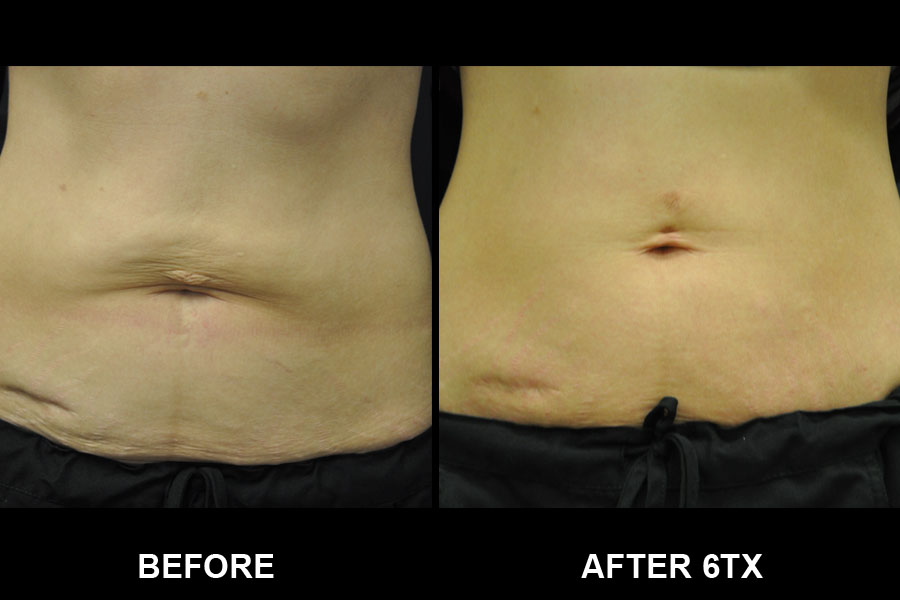 Before and After image of Exilis Ultra of woman's stomach