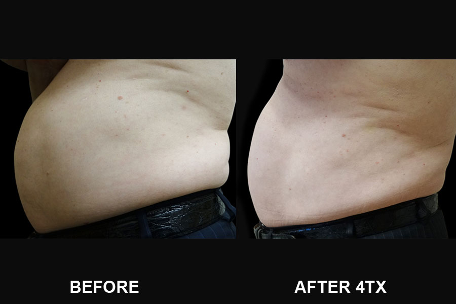 Before and After image of Vanquish ME of man's stomach