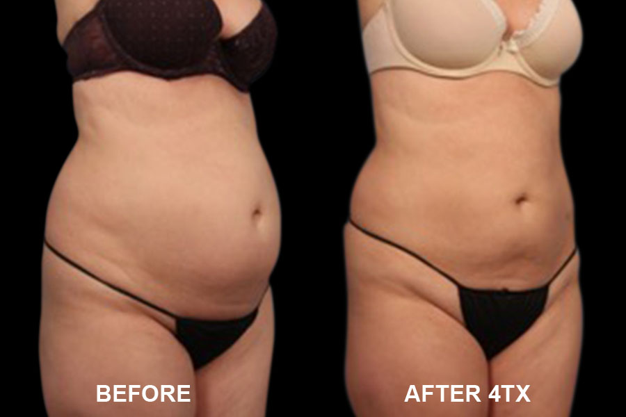 Before and After image of Vanquish ME of woman's stomach