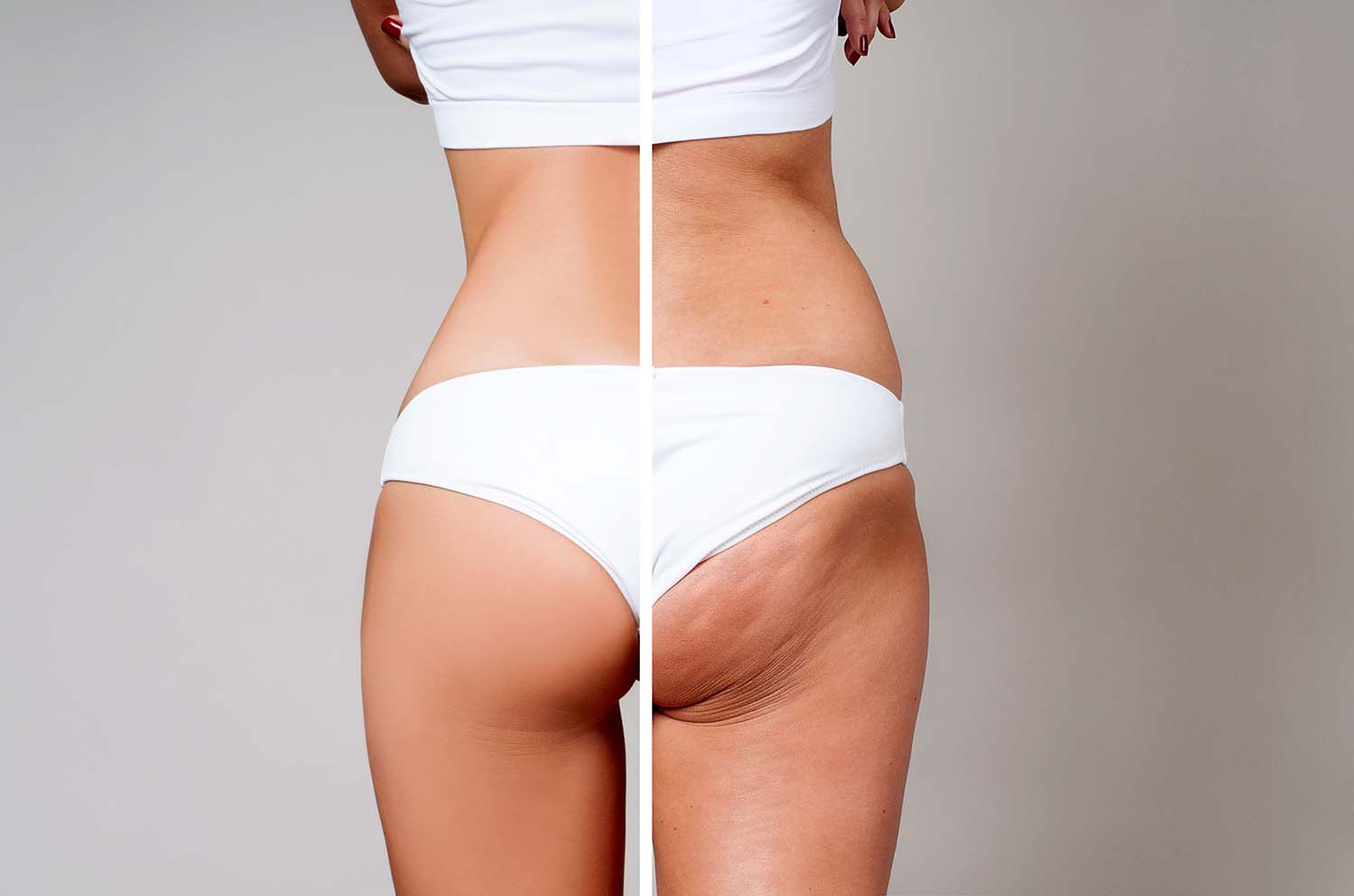 Woman showing cellulite reduction on buttocks